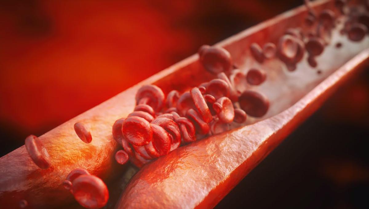 Ilustración de una vena con aterosclerosis. Shutterstock / Crevis